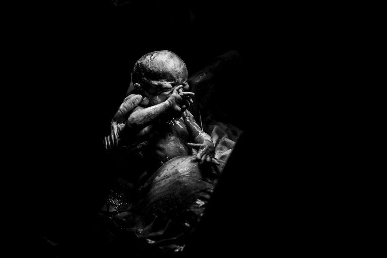 Keizersnede geboortefotografie 1 768x512 - Portfolio